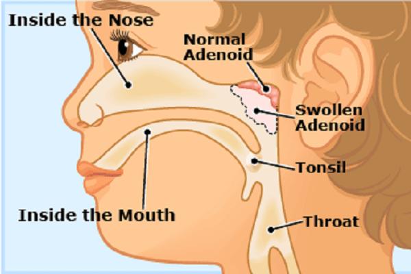 Hipertrofia Adenoideana