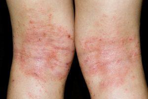 Infecções por Hookworm em humanos
