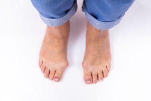 Joanetes ou deformidade de Hallux Valgus