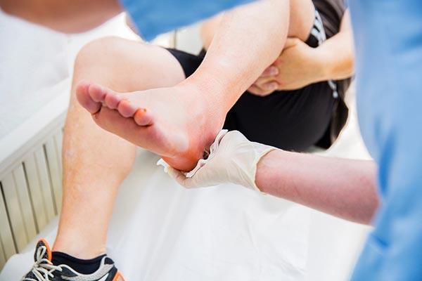 Lesão Osteocondral do Talo