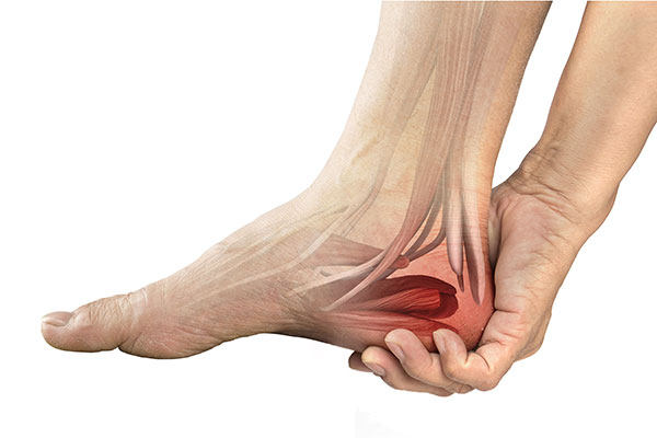 Músculo do Pé Abdutor Digiti Minimi Esticado
