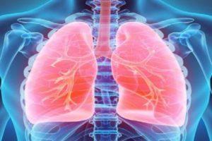 O que é Doença Pulmonar Induzida por Drogas