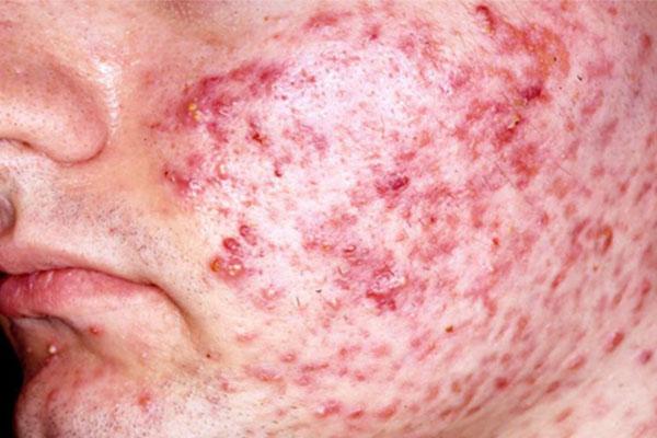 O que é Histiocitoma Fibroso