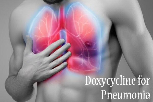 O que é Pneumonia Atípica Zoonótica