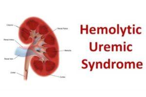 O que é Síndrome Hemolítico-Urêmica