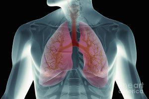O que é a atelectasia pulmonar
