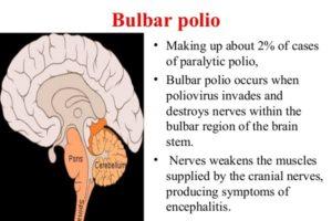 O que é a poliomielite Bulbar