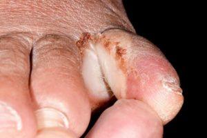 O que é o abscesso do dedo do pé