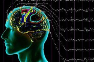 O que é o estado epiléptico refratário