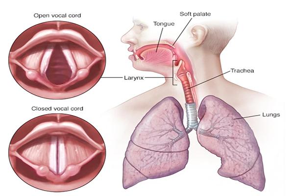 O que é paralisia de cordas vocais e como ela é tratada?