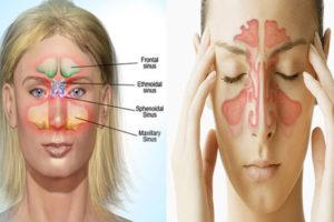 O que é sinusite esfenoidal