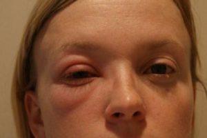 O que a Doença de Grave Faz aos Seus Olhos?