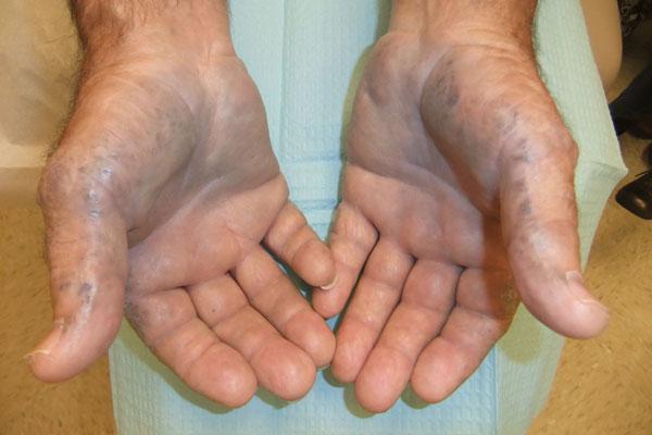 O que as mãos e os dedos azuis indicam e quais são suas causas?