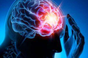O que causa epilepsia