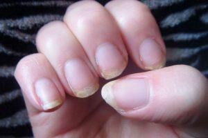 O que causa onicosquizia ou rachaduras nas unhas e como evitá-lo?