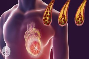 O que causa placas nas artérias