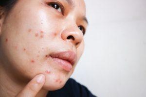 O que faz o ácido salicílico para acne?