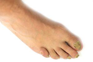 O que fazer quando as unhas dos pés caem?
