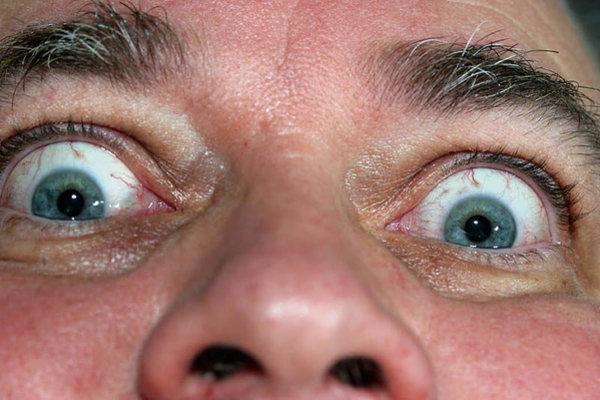 O que são Boogers Eye