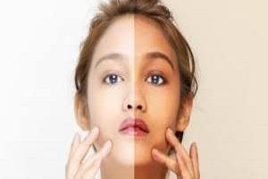 O tom da pele fica mais escuro com a idade?