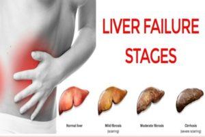 Os 4 estágios da cirrose do fígado