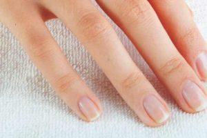 Peeling Dedo Nails