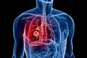 Pneumoconiose ou Doença Pulmonar Negra