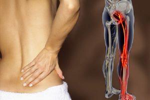 Pode um quiroprático ajudar um nervo ciático pinçado?