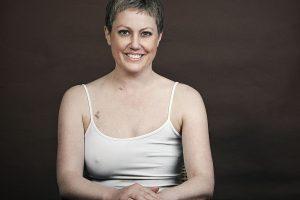 Por que é necessária mastectomia e por que o mamilo tem que ser removido em uma mastectomia?