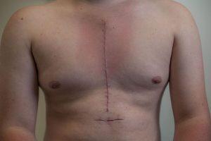 Quão grande é a cicatriz da cirurgia cardíaca aberta?
