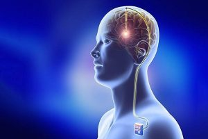Quais são as complicações motoras da doença de Parkinson?