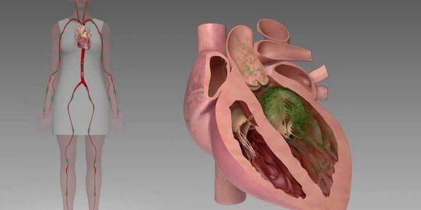 Quais são os exercícios de recuperação para endocardite