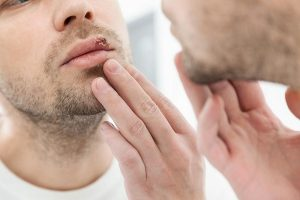Quais são os tipos comuns de herpes e o que desencadeia a infecção por herpes