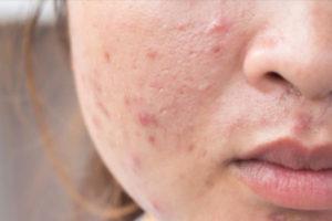 Qual é a bactéria que causa acne?