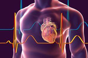 Qual é a principal causa de miocardiopatia?