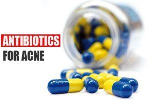 Qual é o melhor antibiótico oral para acne?