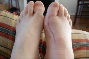Qual é o período de recuperação após a cirurgia de Bunion?