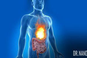 Quanto tempo duram os sintomas do refluxo ácido