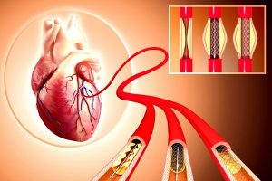Quanto tempo uma pessoa pode viver após a angioplastia?