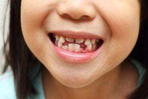 Quantos dentes de bebê estão lá e quando cai?