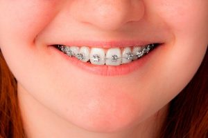 Que tipo de dentes precisam de aparelho?