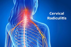 Radiculite Cervical