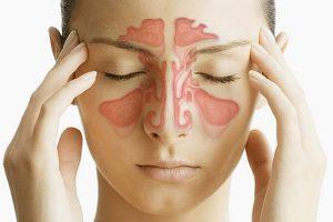 Sinusite aguda e crônica