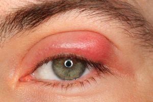 Stye Sty ou Hordeol Causas Sintomas Tratamento Antibióticos Analgésicos