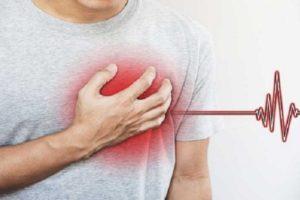 Taquicardia Atrial Paroxística