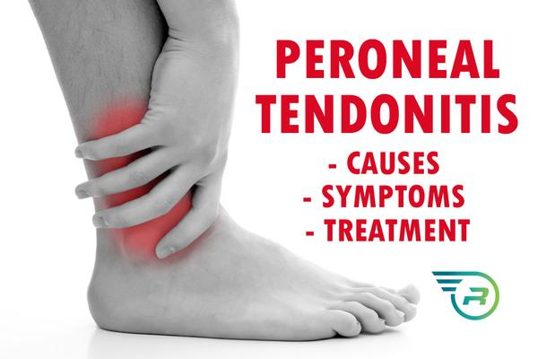 Tendinite peroneal