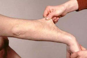 Tratamento e Gestão da Síndrome de Ehlers Danlos ou EDS