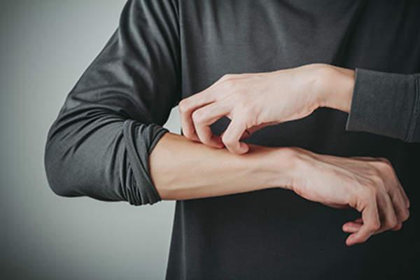 Urticária Dermatográfica ou Escrita da Pele