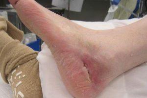 abcesso da articulação do tornozelo