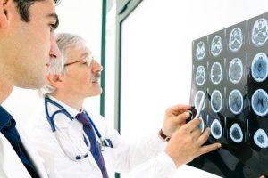 acidente vascular cerebral isquêmico agudo